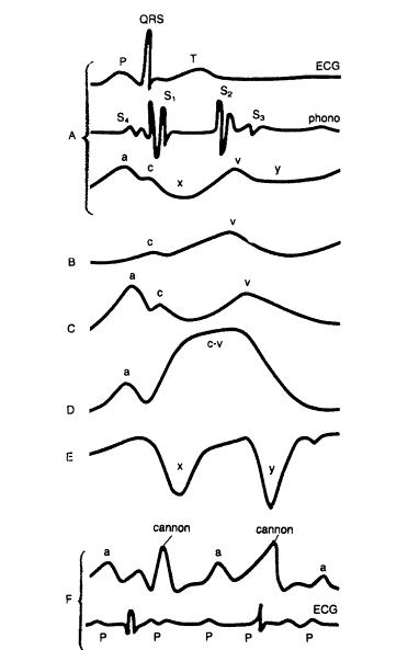 موسوعة كاملة امراض القلب